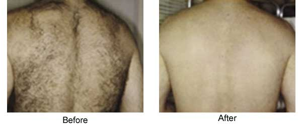 Back Hair Reduction