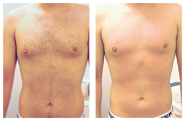 Chest & Stomach Hair Reduction